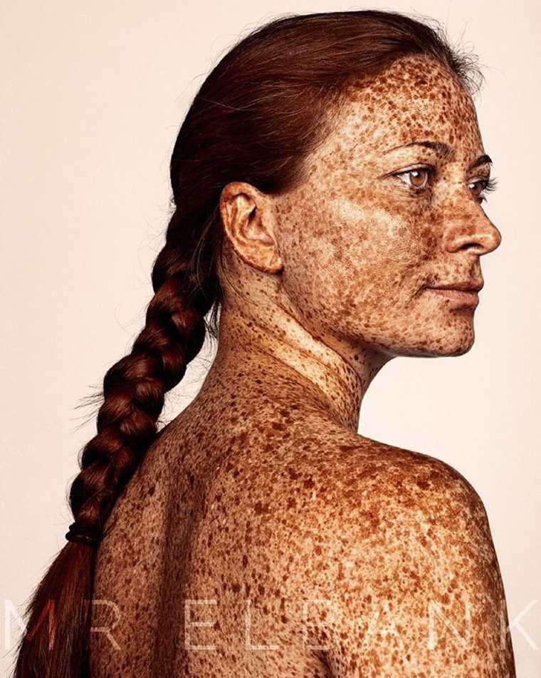 Brock Elbank Freckles tache de rousseurs